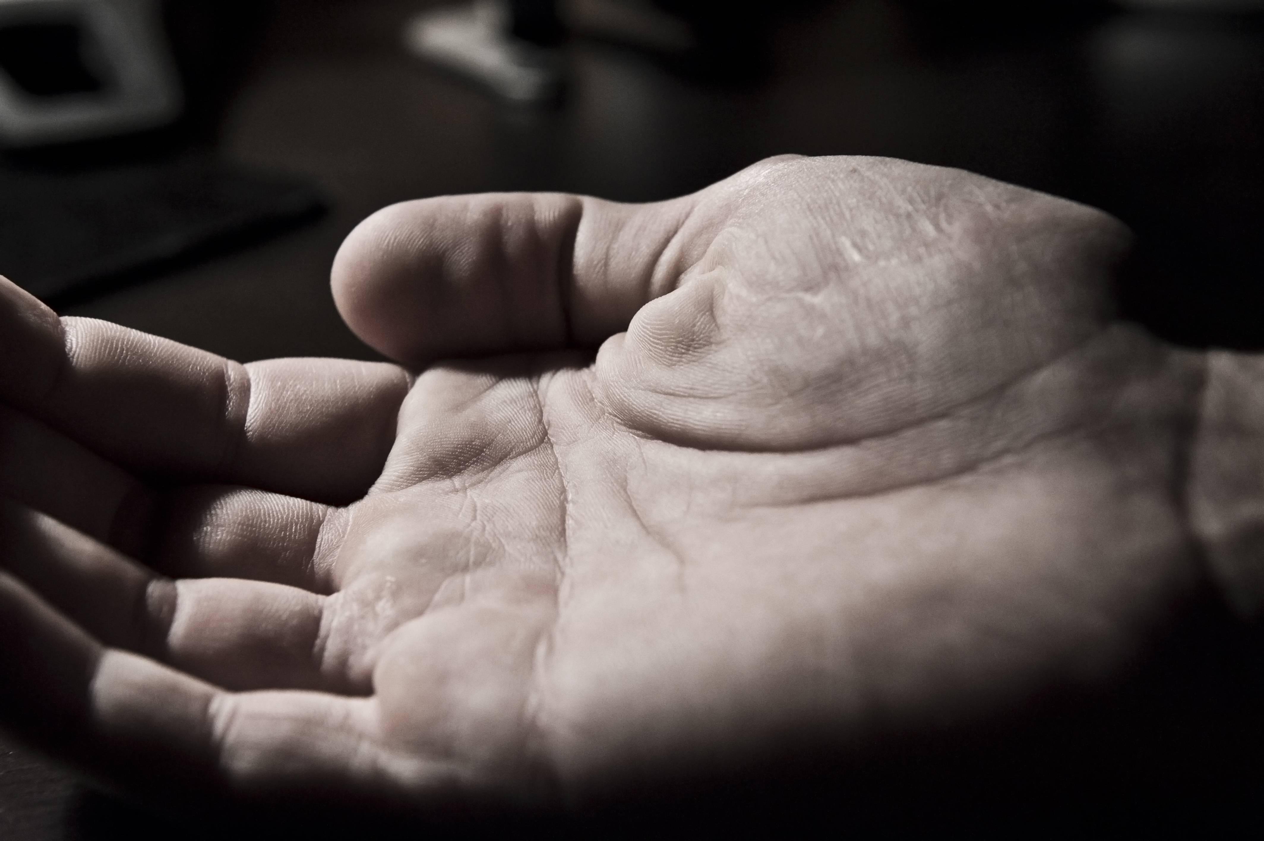 huvudvärk domningar i händer