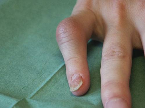 svullen led finger