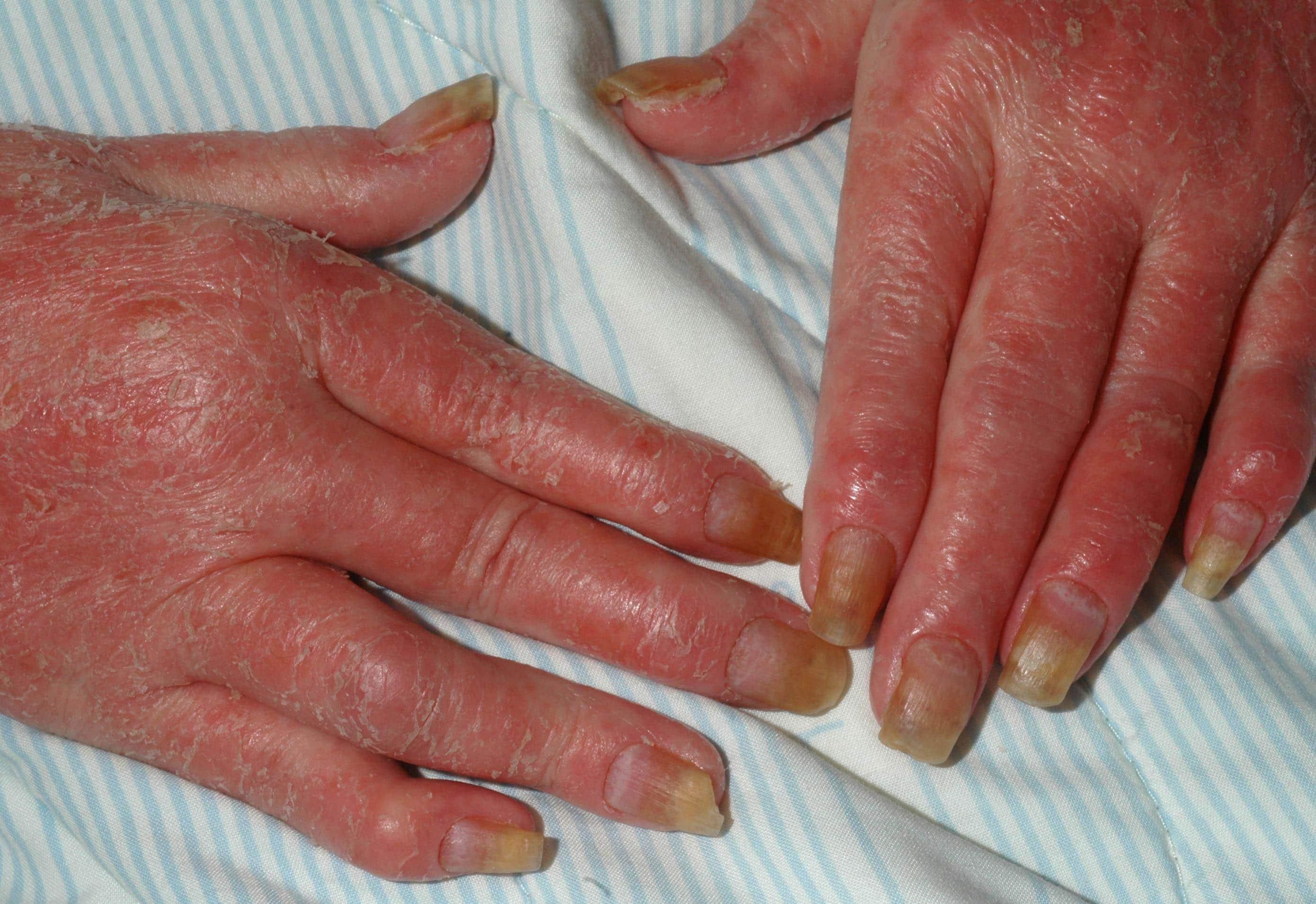 fjällar på fingrarna