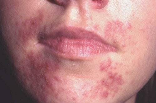 rosacea behandling tetralysal
