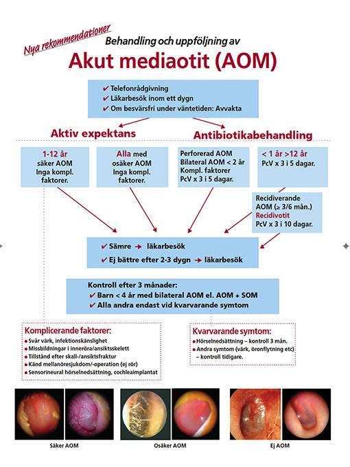 Inflammation i mellanörat