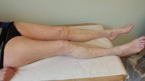 blodpropp i benet dödlighet