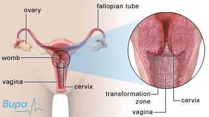 förändringar i livmodern