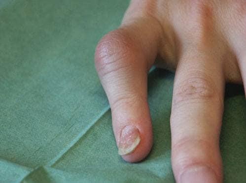 Bild av monoartrit med tendinit och onykia punktata